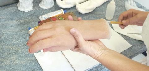 Prothèse de main et poignet réalisée dans l'atelier du prothésiste AHP Europe, basé à Maisons-Alfort